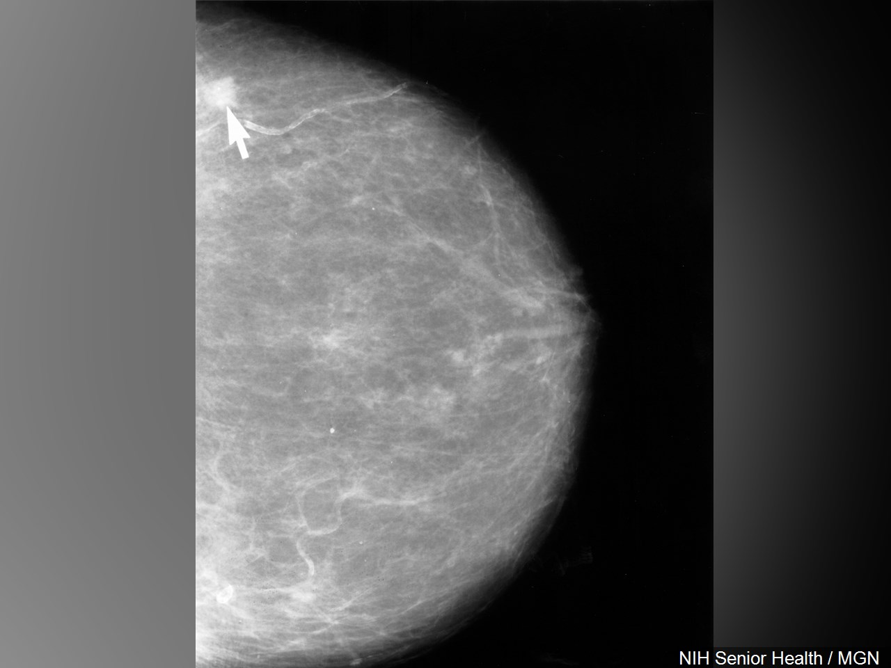 mammogram pic