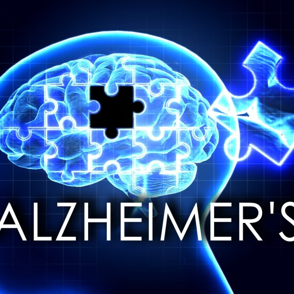 Alzheimer's_1479303344169.jpg