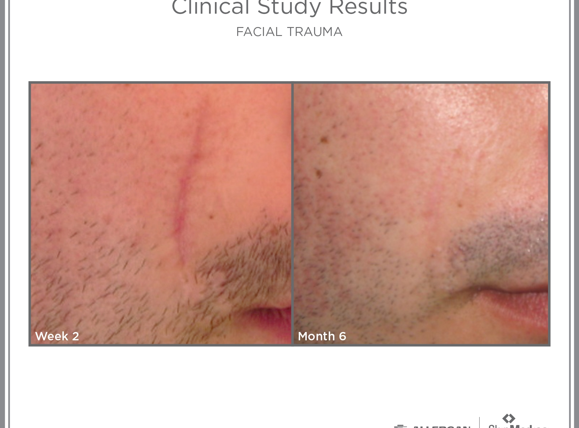Scar Recovery Male_FacialTrauma_1513288722797.jpg
