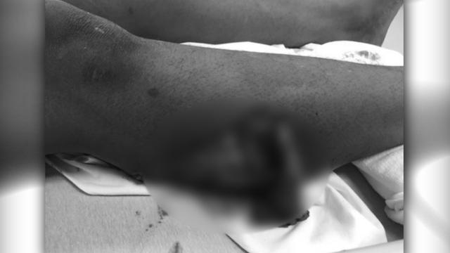 Leg Injury_1535155845222.jpg_53002495_ver1.0_640_360_1535230708063.jpg.jpg