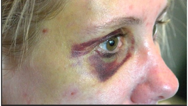 woman attacked_1541208258453.jpg.jpg