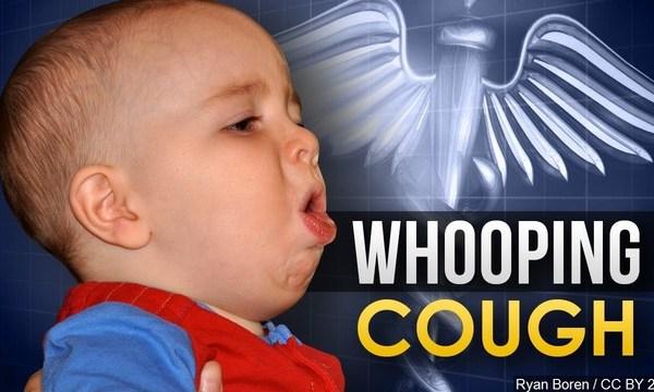 Whooping Cough_1555361423874.jpg.jpg